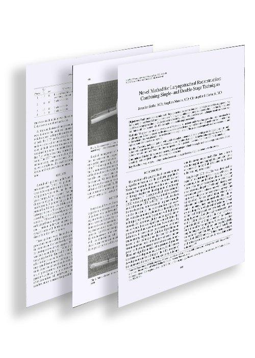 imagen para artículo de una etapa y media