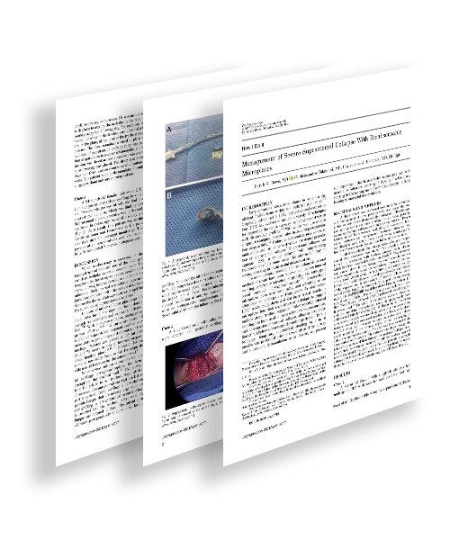 imagen del artículo sobre colapso suprastomal